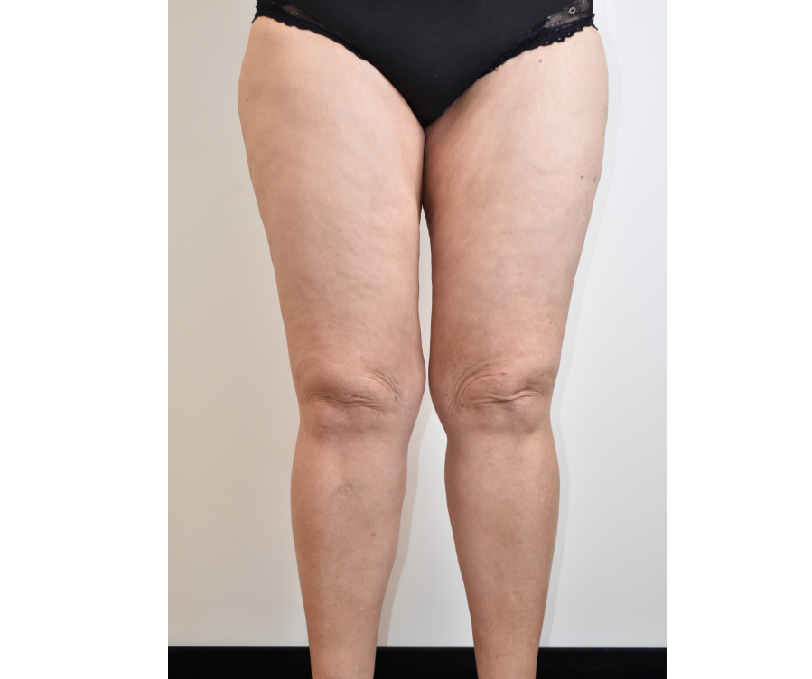 Liposuction to hips, lateral and medial thighs, and knees