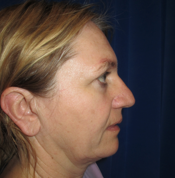After-side-face-image